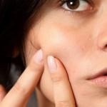Stop aux boutons : comment faire disparaitre un bouton sur le visage ?